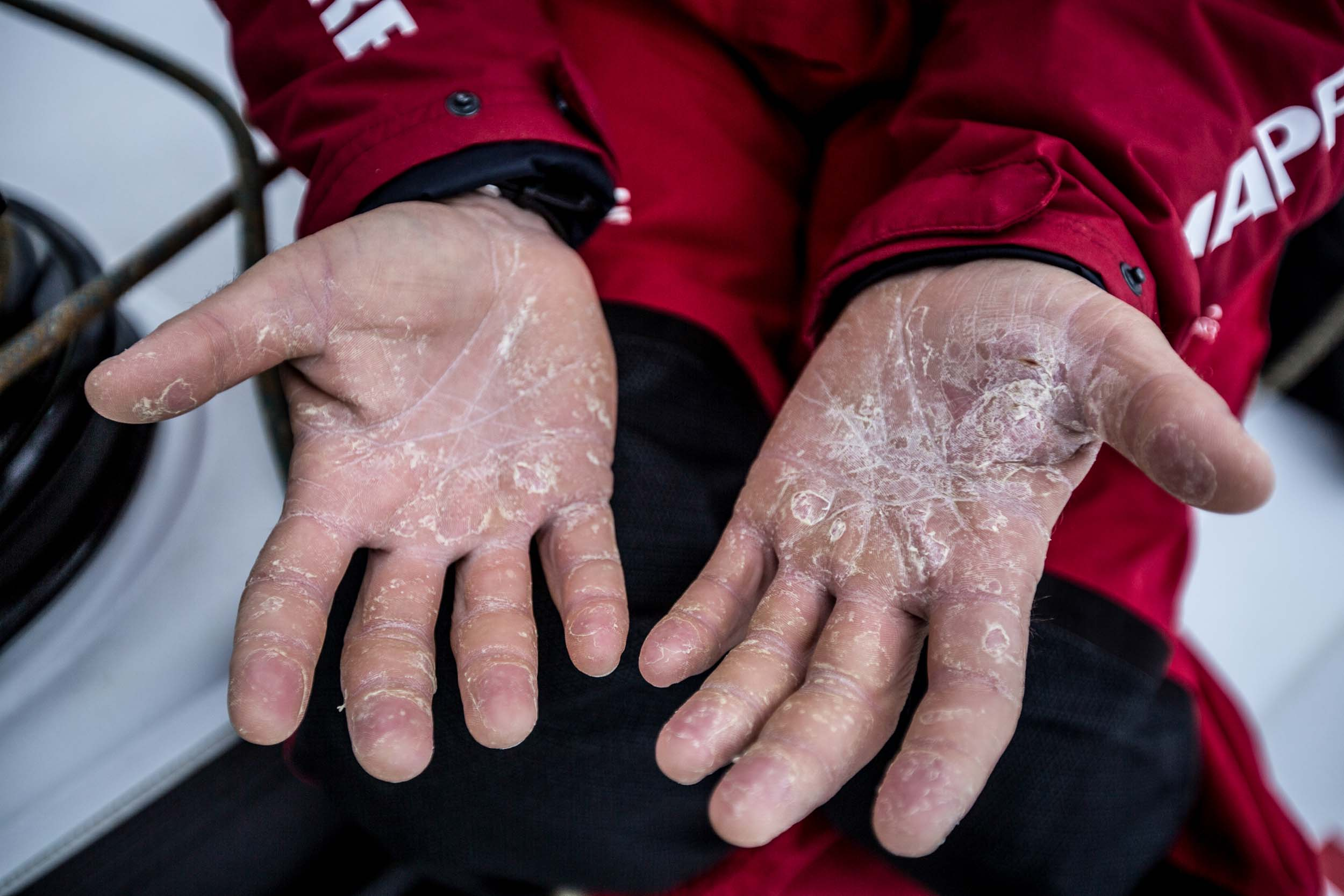 After 27 days at sea. Xabi's hands